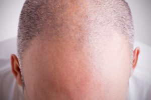 Hair loss and baldness